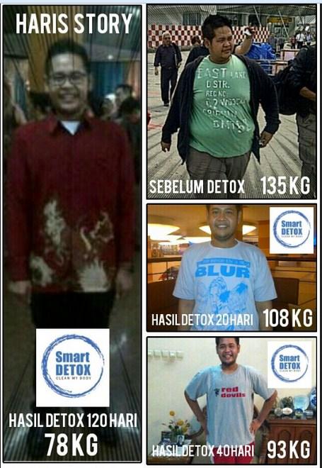 DISCLAIMER: Hasil Smart Detox pada setiap orang bisa berbeda. Tergantung pada metabolisme tubuh dan pola hidup sebelumnya.